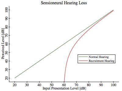 Sensioneural Hearing Loss